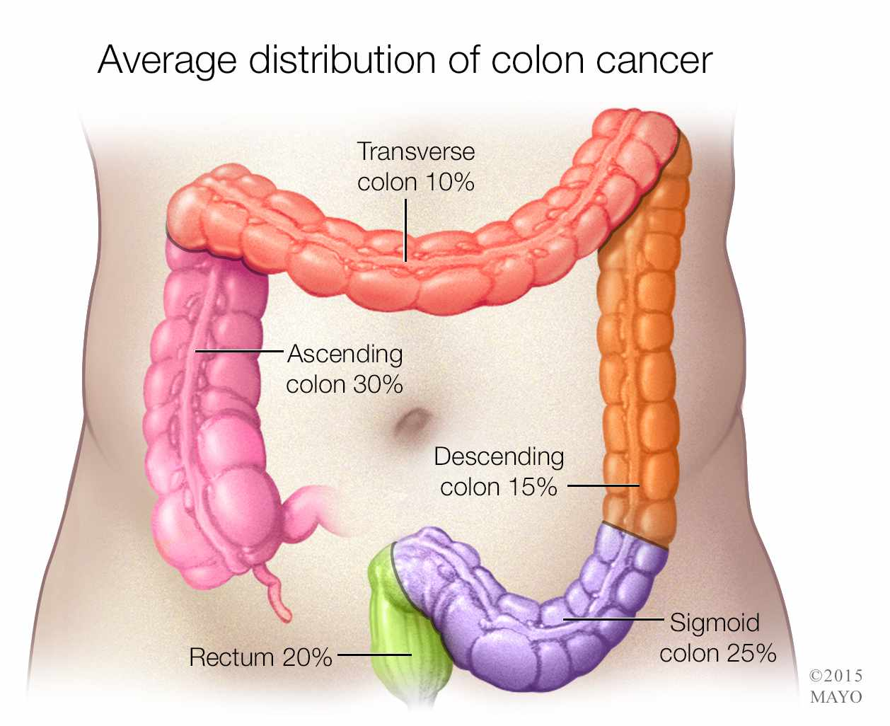 colon cancer distribution